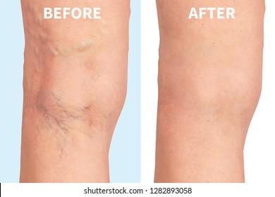 varicose veins on the skin macro close up circulation problem medicine concept