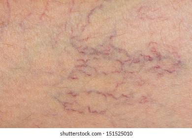 varicose veins on the skin. Macro