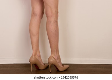 Varicose veins on a slim female legs. Phlebology - image