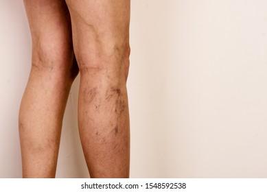 Varicose veins on a slim female legs. Phlebology - image