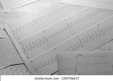 Various electrocardiograms in black and white. Registry of cardiac activity. Cardiac arrhythmias recorded on paper.