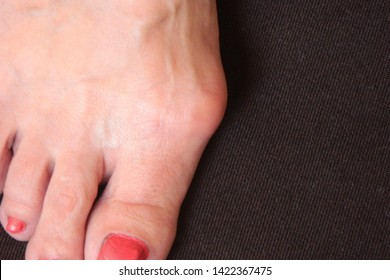 Varus valgus and Hallux valgus or bunion on middle aged woman foot. Isolated closeup on dark background. Concept of treatment or cosmetology help