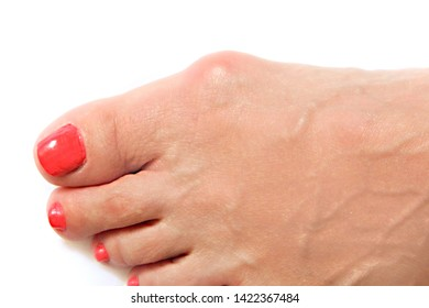 Varus valgus and Hallux valgus or bunion on middle aged woman foot. Isolated closeup on white background. Concept of treatment or cosmetology help