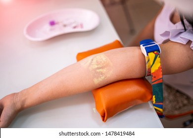 Vein Scanning. Patient Hand With Veins Mapping Close Up