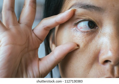 Veins on red eye asian woman,Eyelid layer,Causes the use of eyes and not enough rest