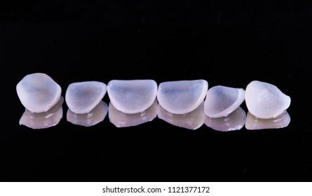 veneers  crowns prosthetics