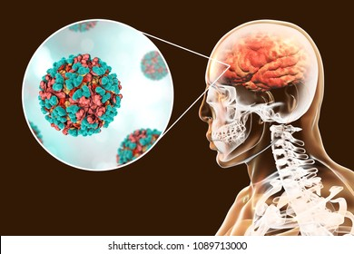 Venezuelan equine encephalitis, medical concept, 3D illustration showing brain infection and close-up view of Venezuelan equine encephalitis viruses