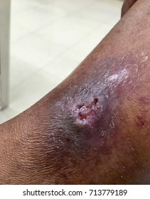 venous ulcer in the legs