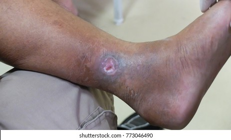 Venous ulcer or varicose ulcer ib healing phase at the medial side of leg.