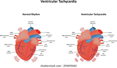 Ventricular Tachycardia Illustration