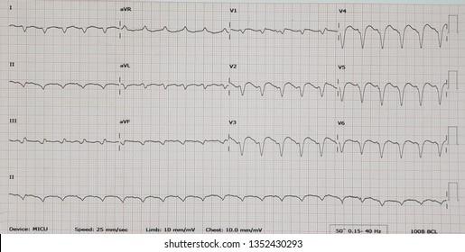 Ventricular tachycardia. VT.