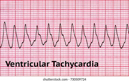 Ventricular tachycardia (VT) is a tachycardia, or fast heart rhythm, that originates in one of the ventricles of the heart. This is a potentially life-threatening arrhythmia.