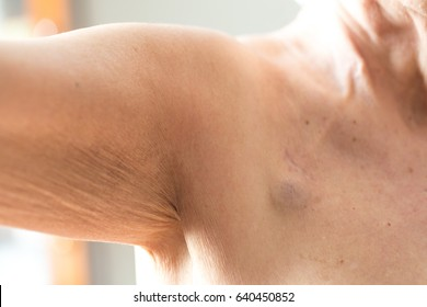 Venus port in a old cancer affected woman