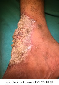 Verrucous carcinoma of skin and  ankle . it show exophytic white scaly lesion like large wart  with irregular border .it is a malignant o cancer skin lesion .