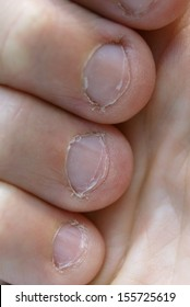 Very chewed and bitten fingernails in bad condition