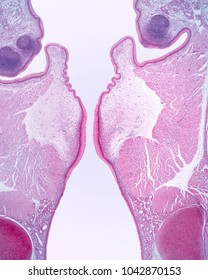 Very low magnification of a larynx showing, from top to bottom, false vocal cords with lymph nodes, vocal chords with intrinsic muscles and trachea with glands and hyaline cartilage.