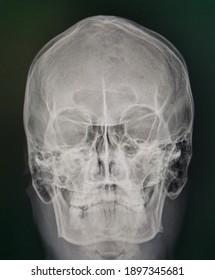 X-ray image, Paranasal sinus  caldwell and water view.