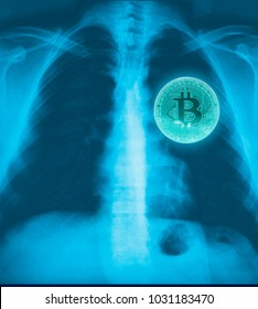 View bitcoin of x ray film on heart