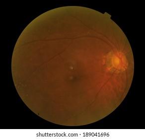 View inside human eye disorders - showing retina, optic nerve and macula .