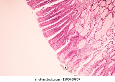 View in microscopic of ductal cell carcinoma, adenonocarcinoma from human breast cancer, tissue section by H and E stain.Pathology diagnosis.Medical concept. Under microscope, magnification 400X