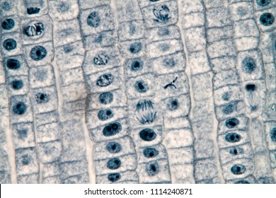 View in microscopy of mitosis cell in the root tip of onion for biological education