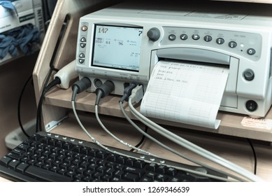 Vintage tone close-up fetal monitor or non stress test printing baby heart beats, electrocardiograph and mother uterine contraction. Labor and delivery room at hospital