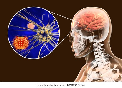 Viral meningitis and encephalitis, medical concept, 3D illustration showing brain infection and close-up view of viruses in the brain