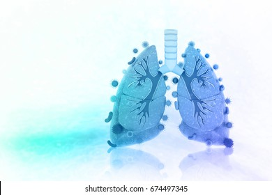 Virus and bacteria infected the Human lungs. lung disease.3d illustration