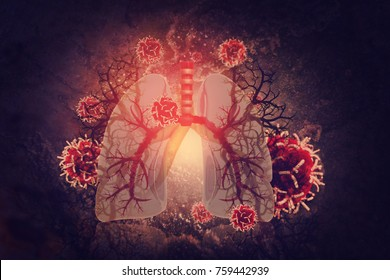Virus and bacteria infected the Human lungs. lung disease.3d render
