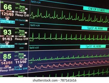 Vital sign EKG monitor.