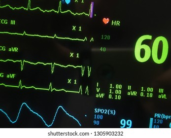 Vital signs monitor on screen in hospital.