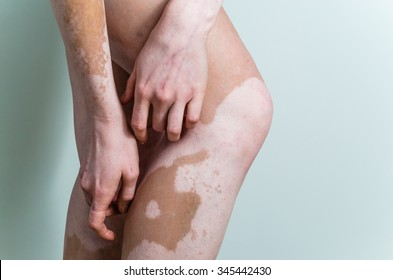 vitiligo affected female knees and arms