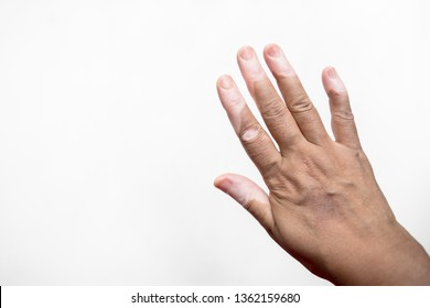 Vitiligo affected hand isolated against white. A disease that causes the loss of skin color in blotches.