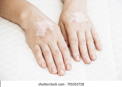 vitiligo affected parts on a female hand