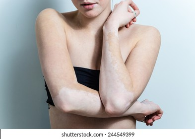 vitiligo affected skin parts on female arms
