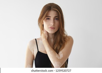Vitiligo affected young woman with blue eyes and loose hairdo posing isolated in studio, holding hand onher neck and staring at camera. Female with bad tan problem. Dermatology and skin disorder