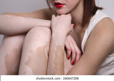 vitiligo affected young woman with red lips indoor
