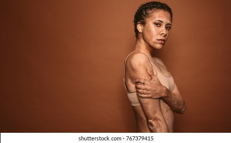 Vitiligo affected young woman standing on brown background with copy space. Female with vitiligo looking at camera.