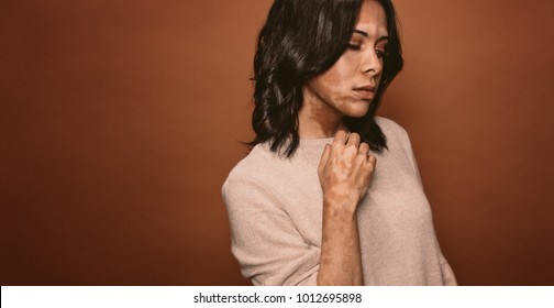 Vitiligo affected young woman in studio. Female with bad tan problem standing on brown background.