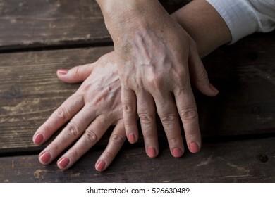 vitiligo condition hands