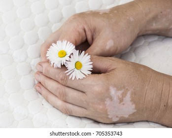 Vitiligo disease on the hand of an elderly woman