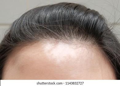 Vitiligo on forehead