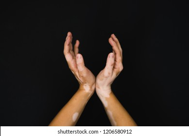 Vitiligo on hands with black blackground