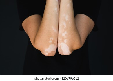 Vitiligo on hands and elbows with black background
