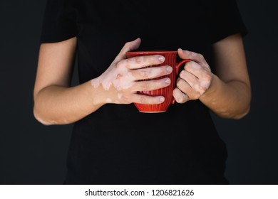 Vitiligo on hands holding a red cup