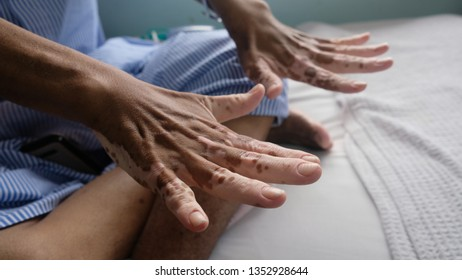 Vitiligo on hands of a patient secondary to steroids effect.