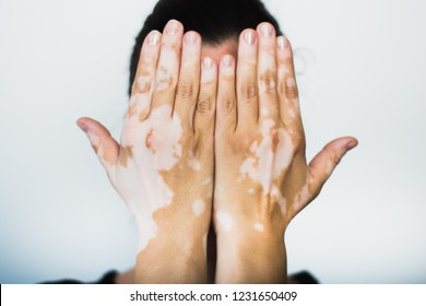 Vitiligo on the hands with white background