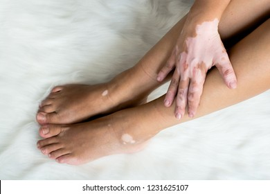 Vitiligo on the legs and hands together