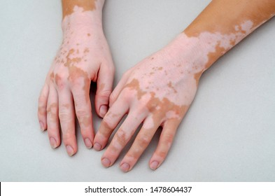 Vitiligo on skin of hands.