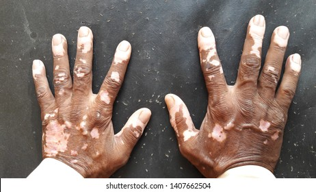 Vitiligo, a skin disease where white pale patches develop on the skin